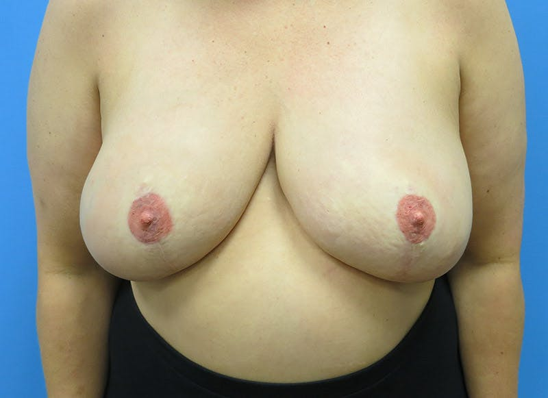 Breast Reconstruction - Flap Gallery - Patient 3831100 - Image 2