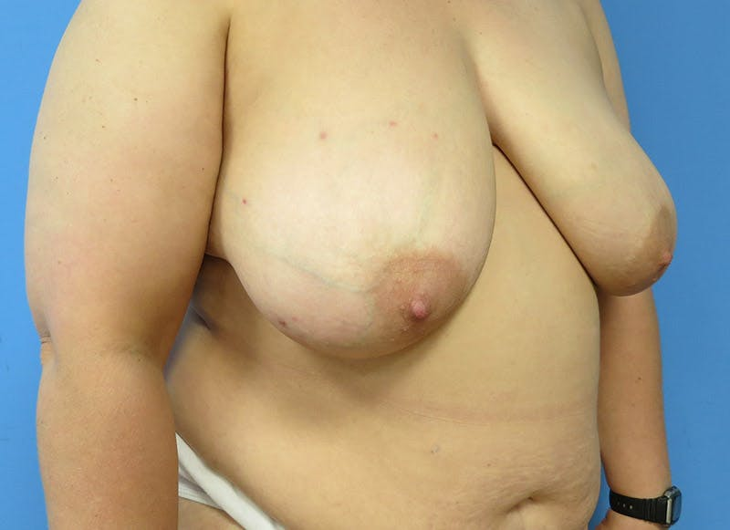 Breast Reconstruction - Flap Gallery - Patient 3831100 - Image 3