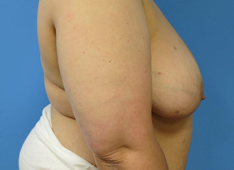 Breast Reconstruction - Flap Gallery - Patient 3831100 - Image 5