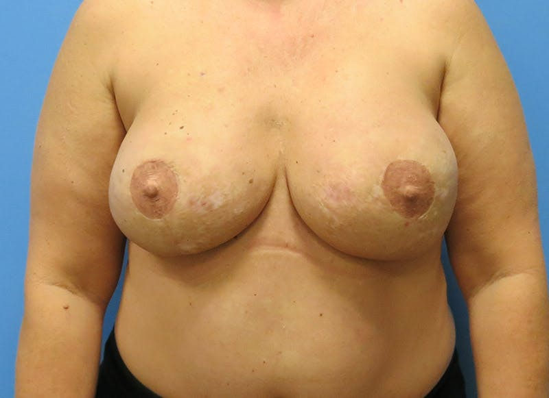 Breast Reconstruction - Flap Gallery - Patient 3831101 - Image 2