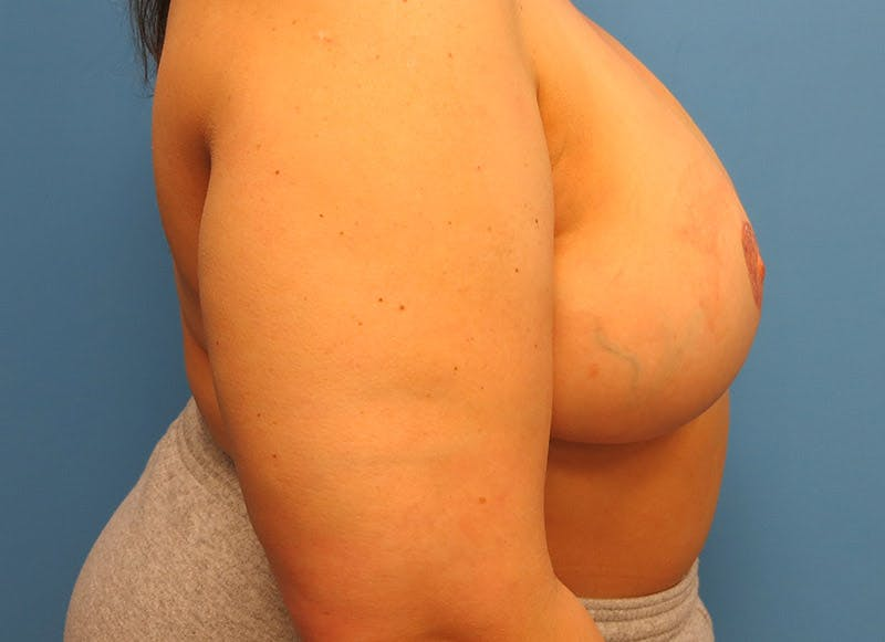 Breast Reconstruction - Flap Gallery - Patient 3831100 - Image 6
