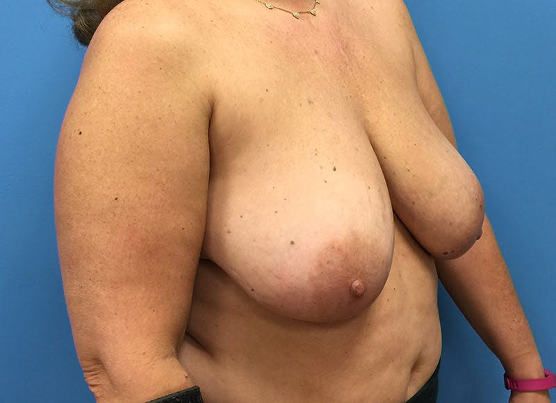 Breast Reconstruction - Flap Gallery - Patient 3831101 - Image 3