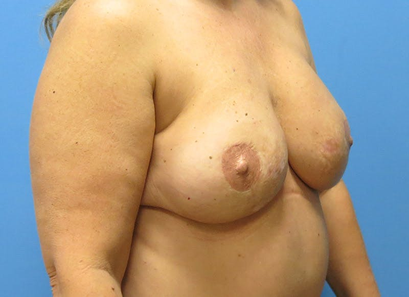 Breast Reconstruction - Flap Gallery - Patient 3831101 - Image 4
