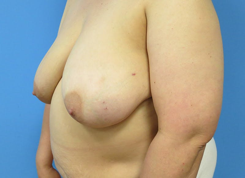 Breast Reconstruction - Flap Gallery - Patient 3831100 - Image 7