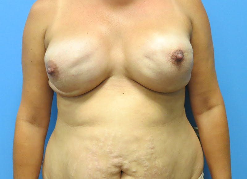 Breast Reconstruction - Flap Gallery - Patient 3831102 - Image 1