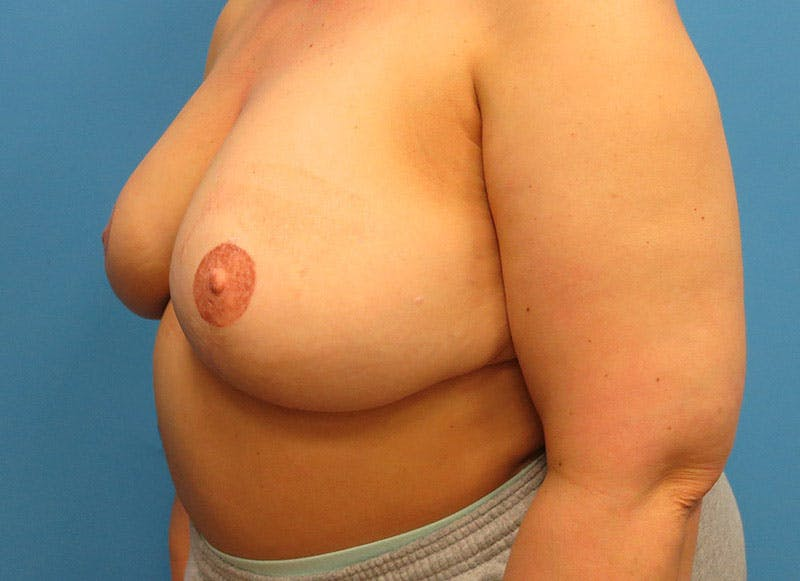 Breast Reconstruction - Flap Gallery - Patient 3831100 - Image 8