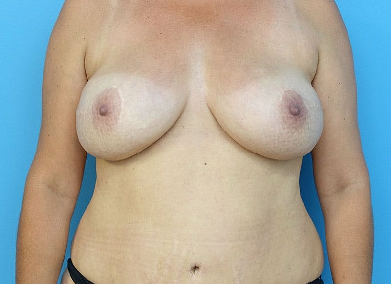 Breast Reconstruction - Flap Gallery - Patient 3831102 - Image 2