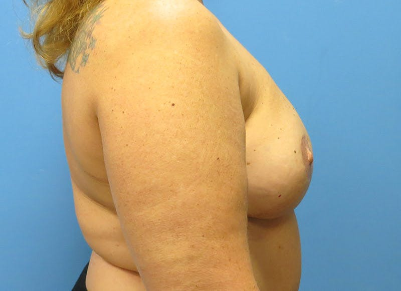 Breast Reconstruction - Flap Gallery - Patient 3831101 - Image 6