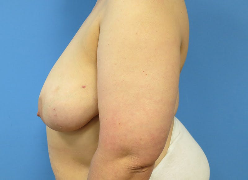 Breast Reconstruction - Flap Gallery - Patient 3831100 - Image 9