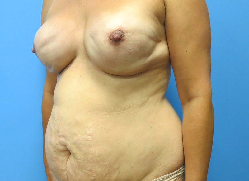 Breast Reconstruction - Flap Gallery - Patient 3831102 - Image 3