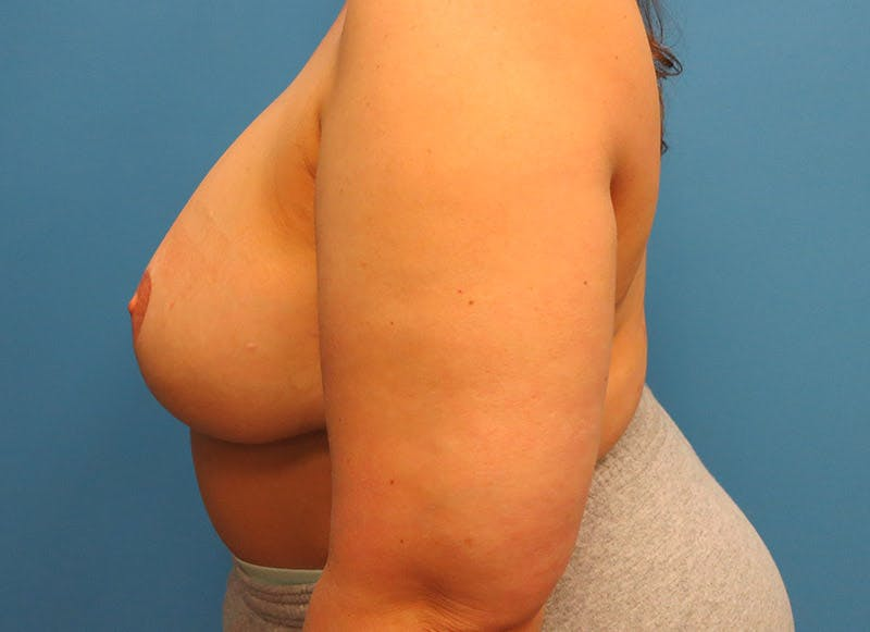 Breast Reconstruction - Flap Gallery - Patient 3831100 - Image 10