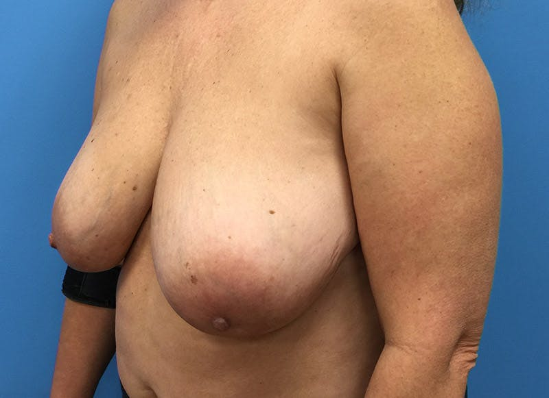 Breast Reconstruction - Flap Gallery - Patient 3831101 - Image 7