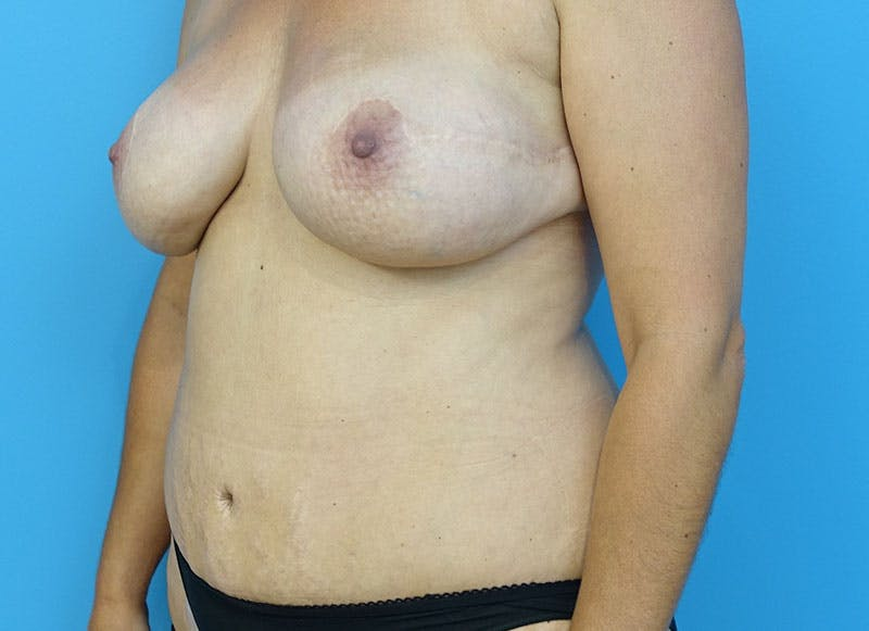 Breast Reconstruction - Flap Gallery - Patient 3831102 - Image 4