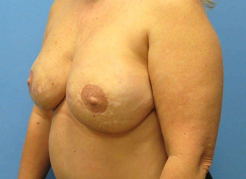 Breast Reconstruction - Flap Gallery - Patient 3831101 - Image 8