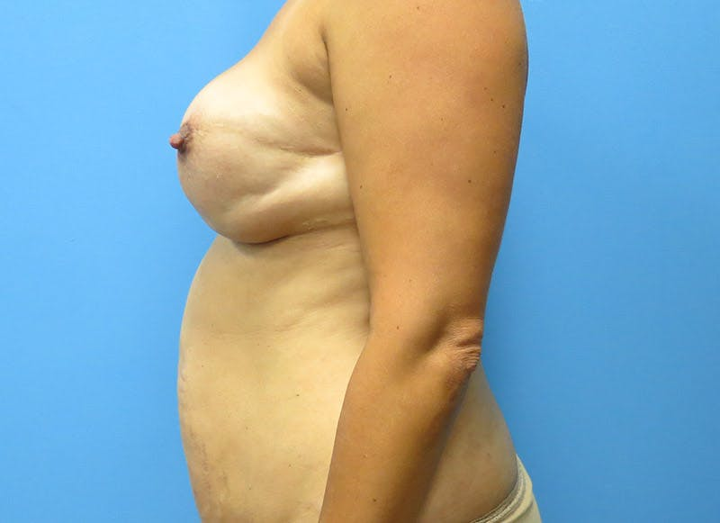 Breast Reconstruction - Flap Gallery - Patient 3831102 - Image 5