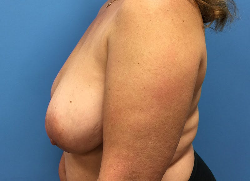 Breast Reconstruction - Flap Gallery - Patient 3831101 - Image 9