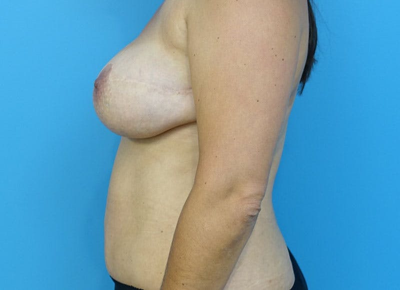 Breast Reconstruction - Flap Gallery - Patient 3831102 - Image 6