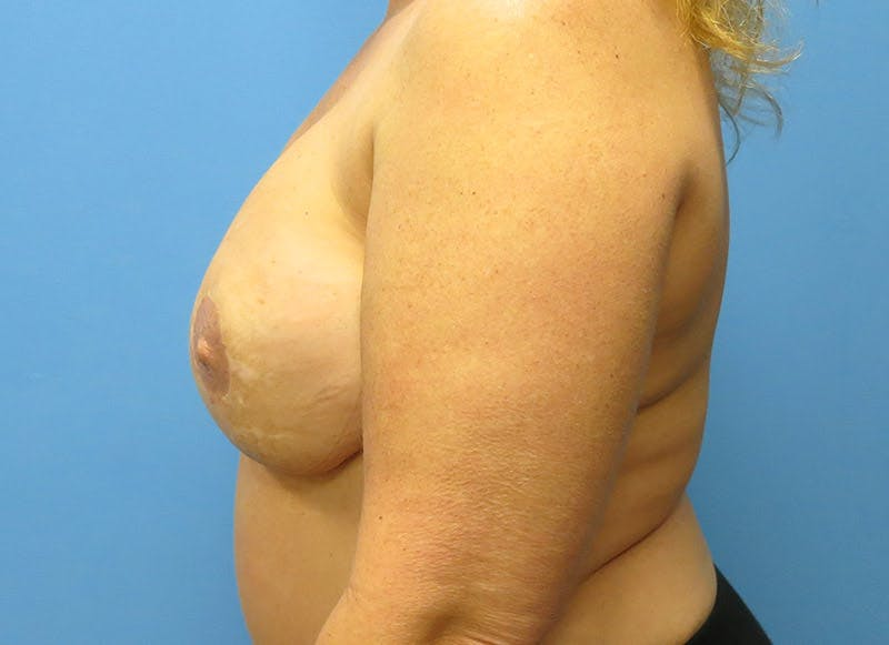 Breast Reconstruction - Flap Gallery - Patient 3831101 - Image 10