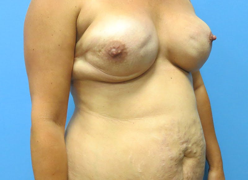 Breast Reconstruction - Flap Gallery - Patient 3831102 - Image 7