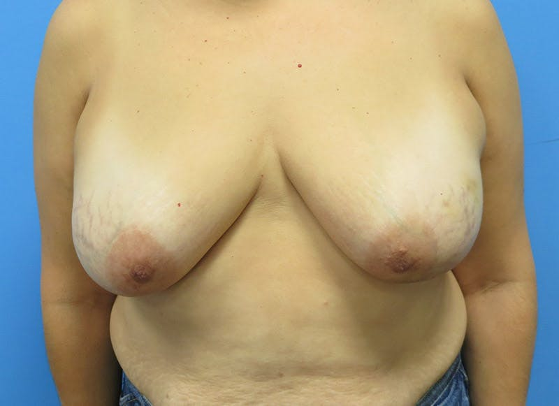 Breast Reconstruction - Flap Gallery - Patient 3831103 - Image 1