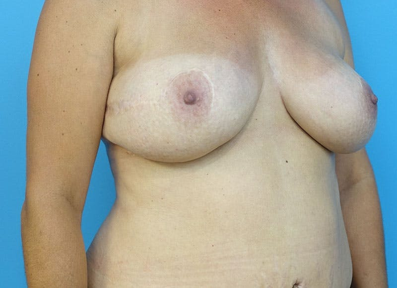 Breast Reconstruction - Flap Gallery - Patient 3831102 - Image 8