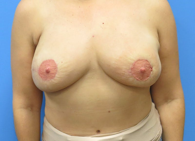 Breast Reconstruction - Flap Gallery - Patient 3831103 - Image 2