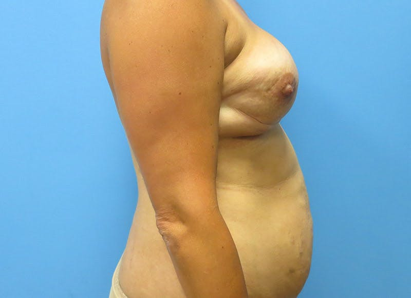 Breast Reconstruction - Flap Gallery - Patient 3831102 - Image 9