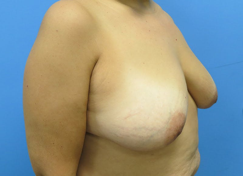 Breast Reconstruction - Flap Gallery - Patient 3831103 - Image 3