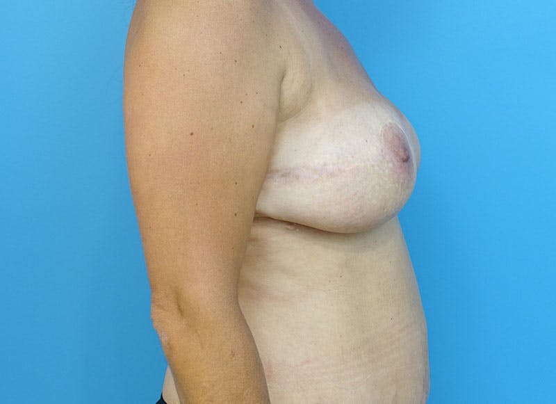 Breast Reconstruction - Flap Gallery - Patient 3831102 - Image 10