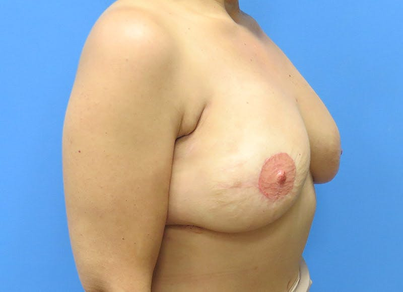 Breast Reconstruction - Flap Gallery - Patient 3831103 - Image 4