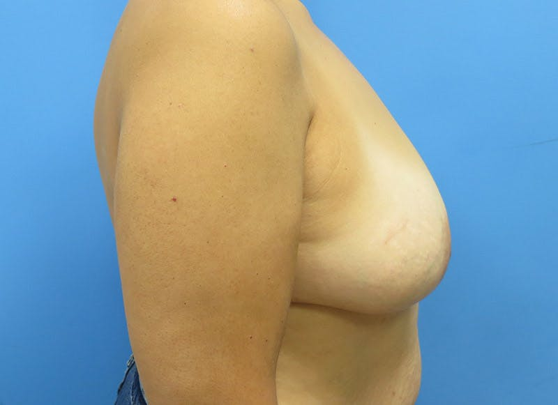 Breast Reconstruction - Flap Gallery - Patient 3831103 - Image 5