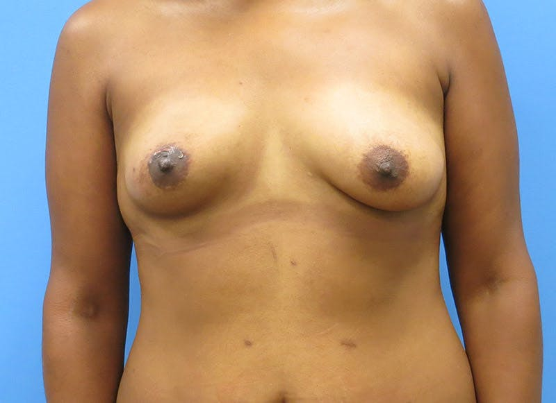 Breast Reconstruction - Flap Gallery - Patient 3831104 - Image 1