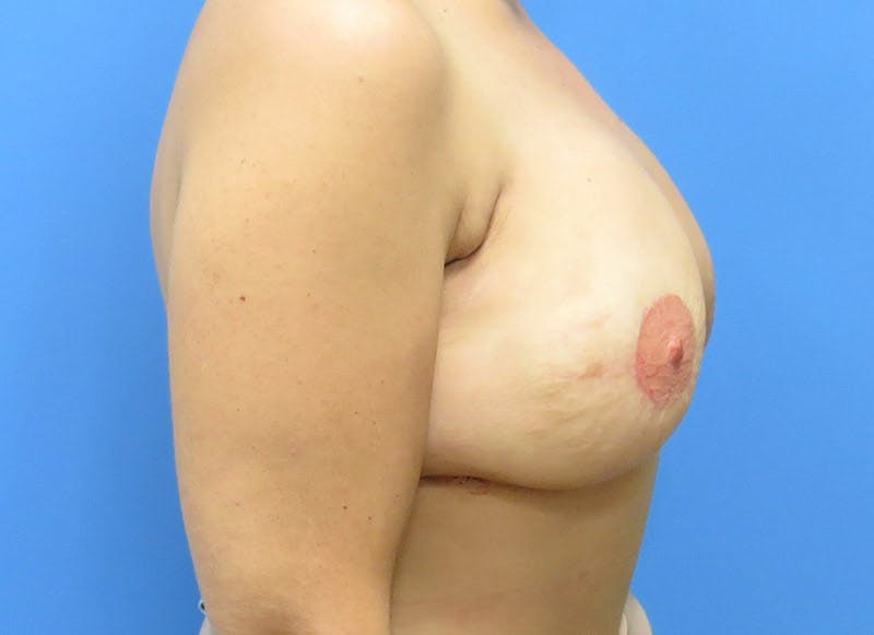 Breast Reconstruction - Flap Gallery - Patient 3831103 - Image 6