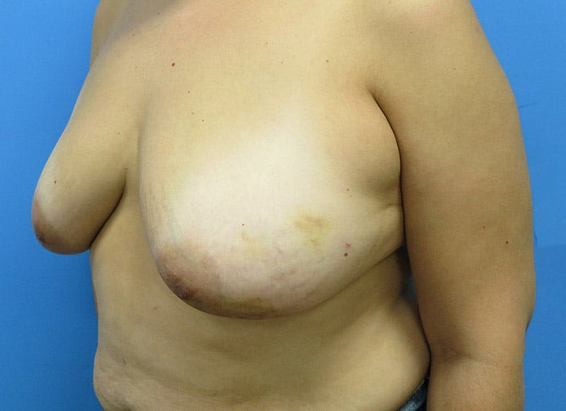 Breast Reconstruction - Flap Gallery - Patient 3831103 - Image 7
