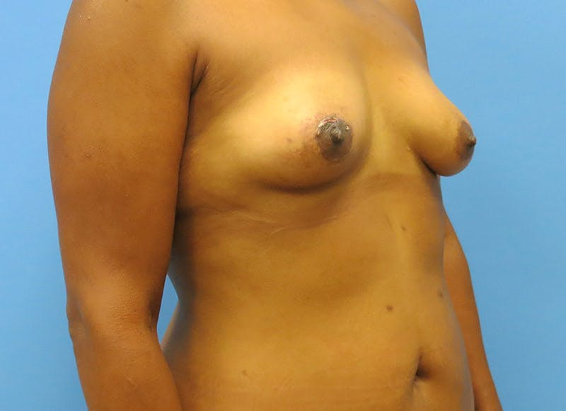 Breast Reconstruction - Flap Gallery - Patient 3831104 - Image 3