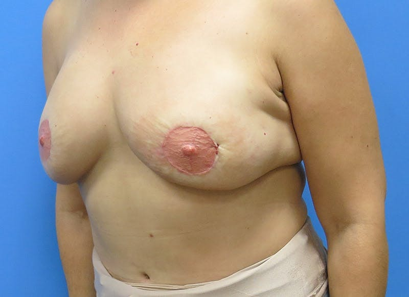 Breast Reconstruction - Flap Gallery - Patient 3831103 - Image 8