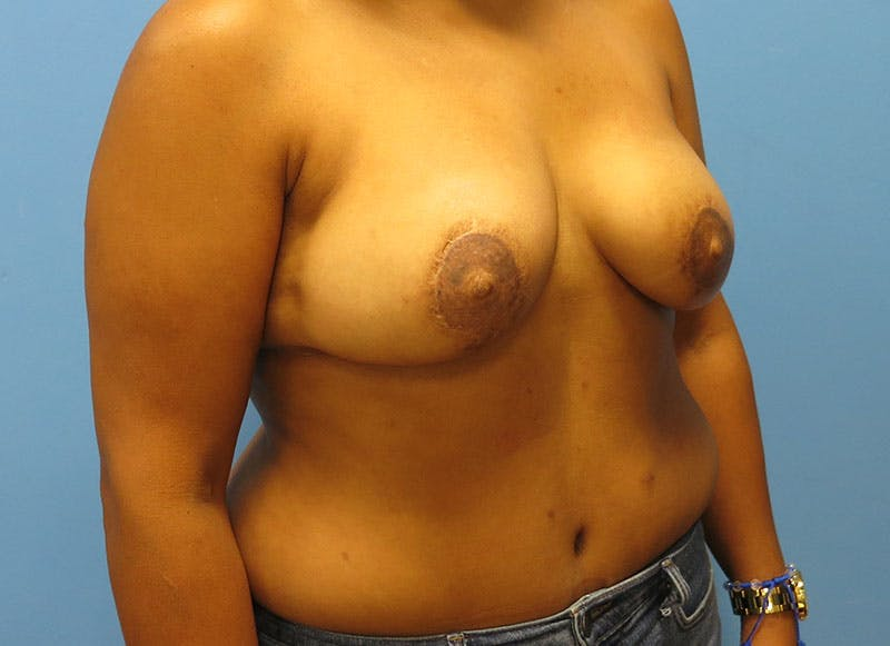 Breast Reconstruction - Flap Gallery - Patient 3831104 - Image 4