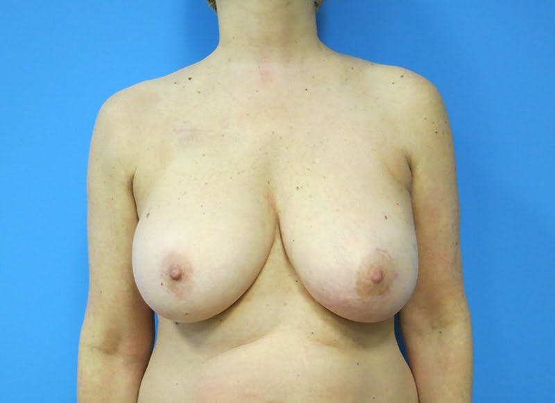 Breast Reconstruction - Flap Gallery - Patient 3831105 - Image 1