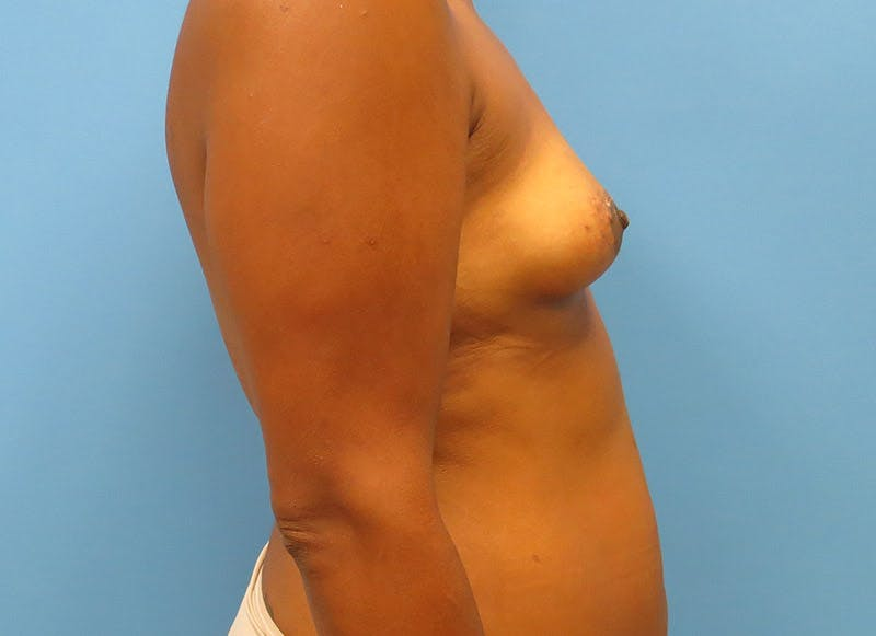 Breast Reconstruction - Flap Gallery - Patient 3831104 - Image 5