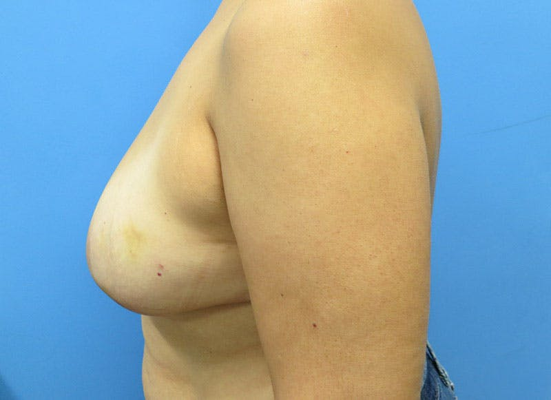 Breast Reconstruction - Flap Gallery - Patient 3831103 - Image 9