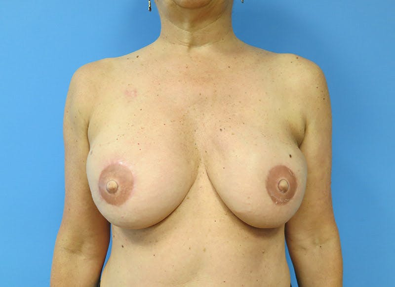 Breast Reconstruction - Flap Gallery - Patient 3831105 - Image 2