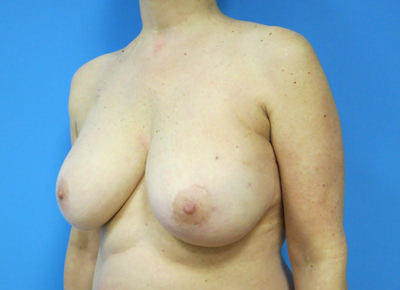 Breast Reconstruction - Flap Gallery - Patient 3831105 - Image 3