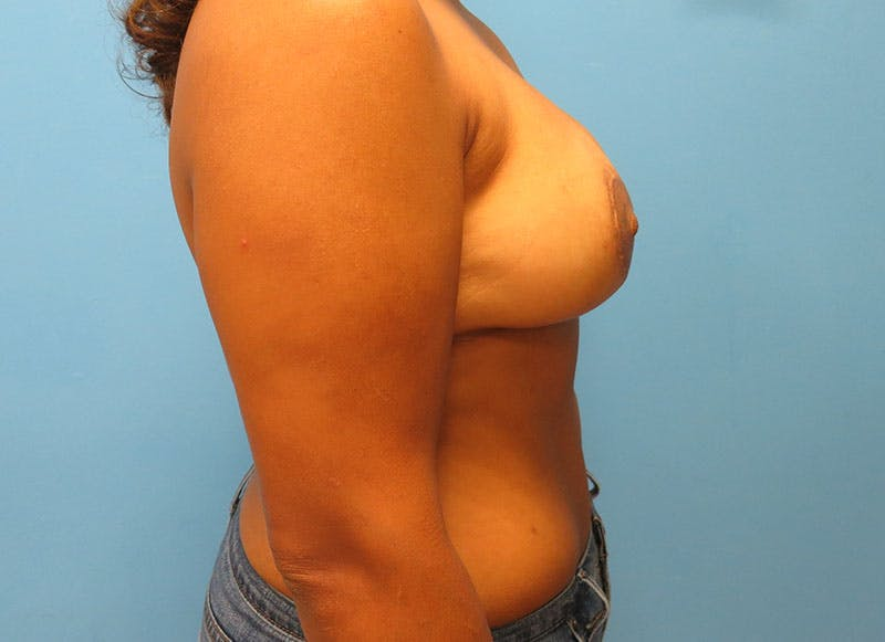 Breast Reconstruction - Flap Gallery - Patient 3831104 - Image 6