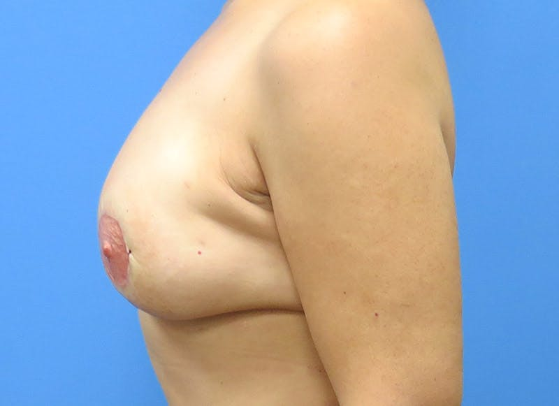 Breast Reconstruction - Flap Gallery - Patient 3831103 - Image 10