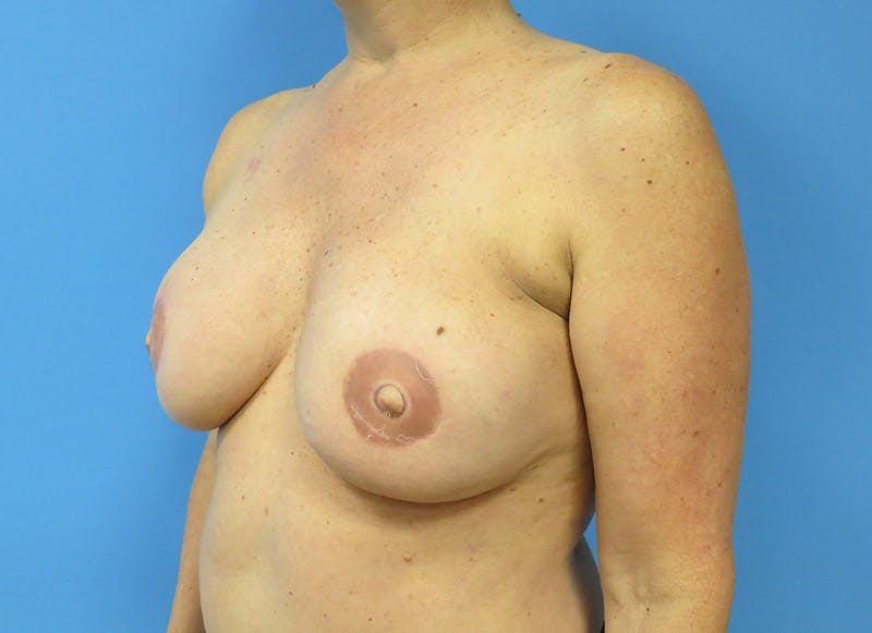 Breast Reconstruction - Flap Gallery - Patient 3831105 - Image 4