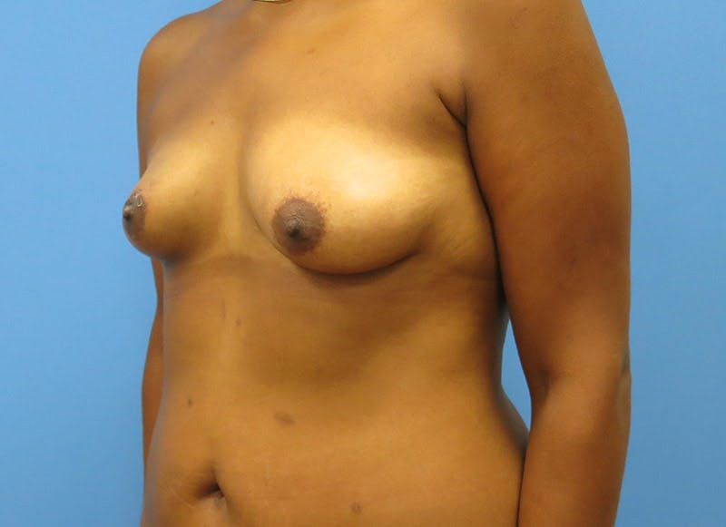 Breast Reconstruction - Flap Gallery - Patient 3831104 - Image 7