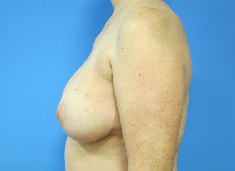 Breast Reconstruction - Flap Gallery - Patient 3831105 - Image 5