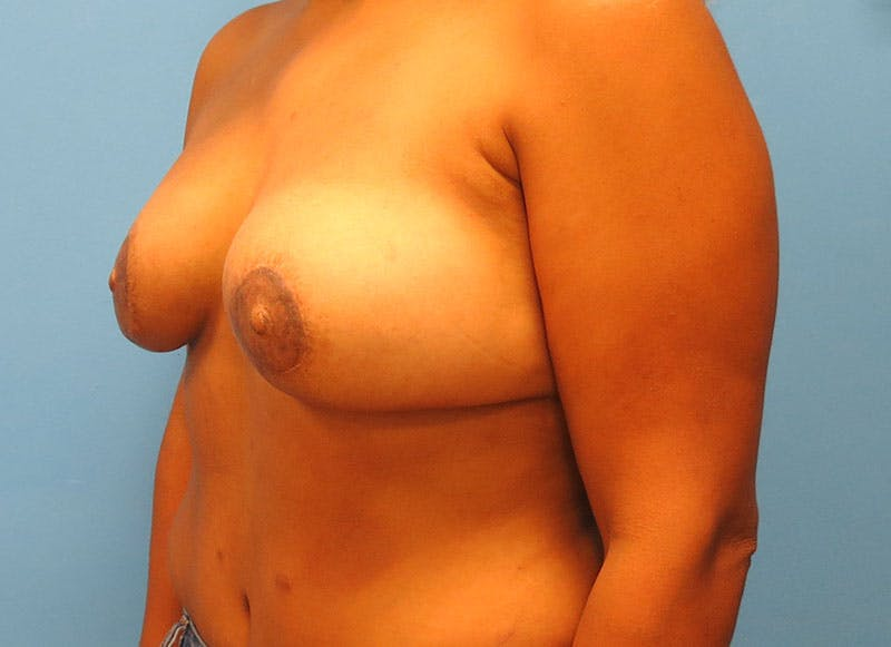 Breast Reconstruction - Flap Gallery - Patient 3831104 - Image 8