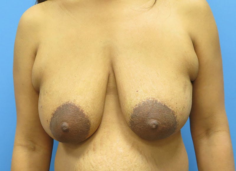 Breast Reconstruction - Flap Gallery - Patient 3831106 - Image 1