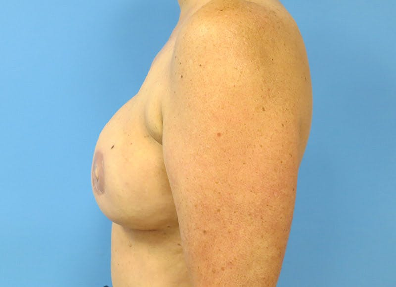Breast Reconstruction - Flap Gallery - Patient 3831105 - Image 6